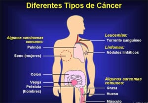 tipos cancer