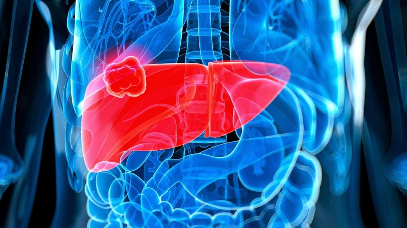 Lo que hay que saber acerca del cáncer de hígado